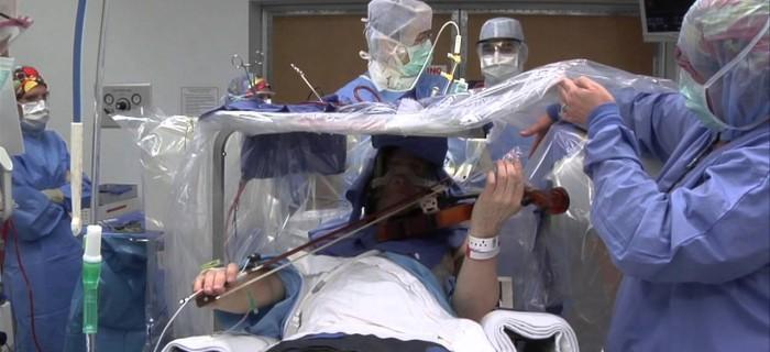 Un hombre toca el violín mientras es operado en su cerebro