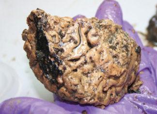 Cerebro de 2600 años