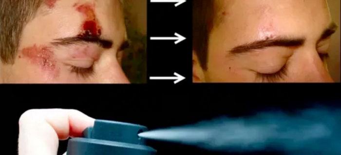 Se está intentando conseguir un espray que cura heridas rápidamente utilizando células madre